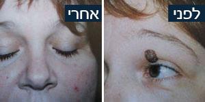 לפני ואחרי הטיפול אצל ד''ר זמיר