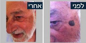 ד''ר אילן זמיר - הסרת שומה