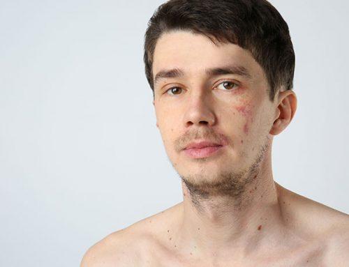 הסרת כתמים מהפנים באופן טבעי: כל מה שצריך לדעת