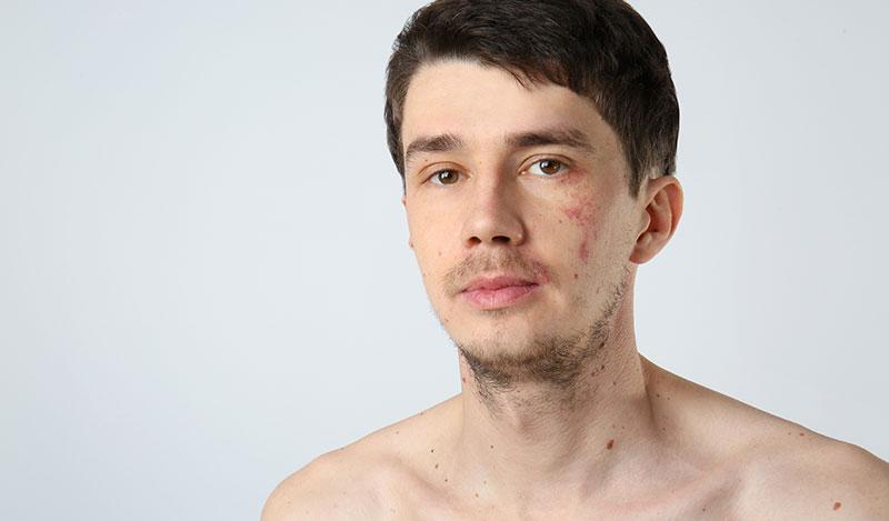 הסרת כתמים מהפנים באופן טבעי