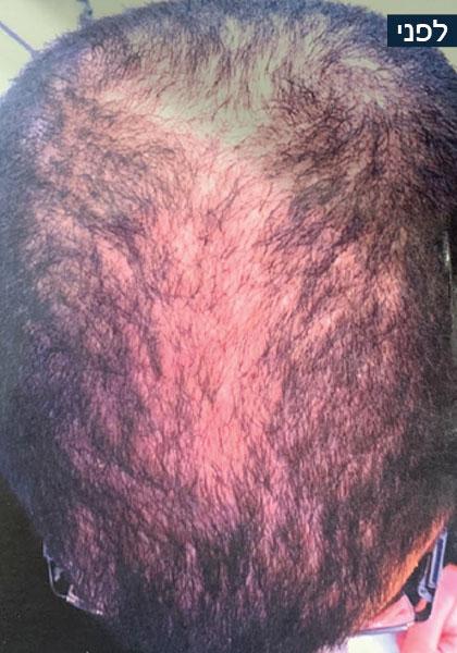 מניעת וריפוי נשירת שיער